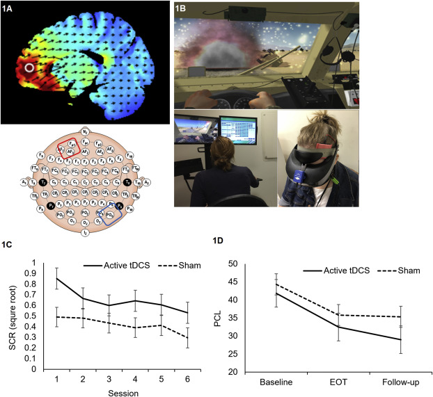 [Abstract] Combined transcranial direct current stimulation with virtual reality exposure for posttraumatic stress disorder: Feasibility and pilot results